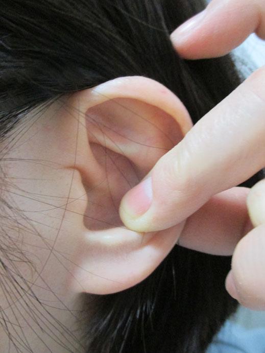 動画 耳垢 栓塞